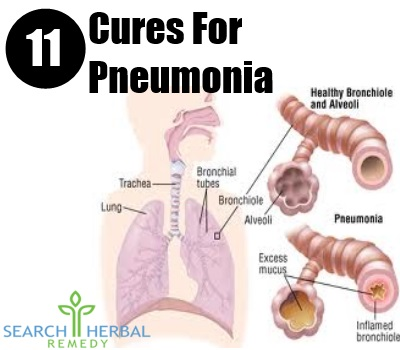 11 Cure For Pneumonia