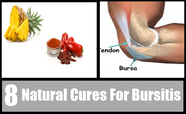 Natural Remedy For Bursitis Knee