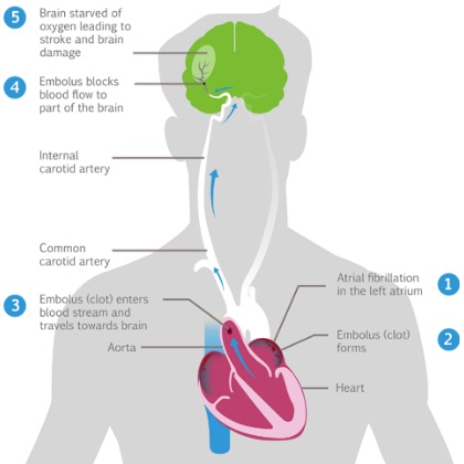 Natural Treatments for Atrial Fibrillation