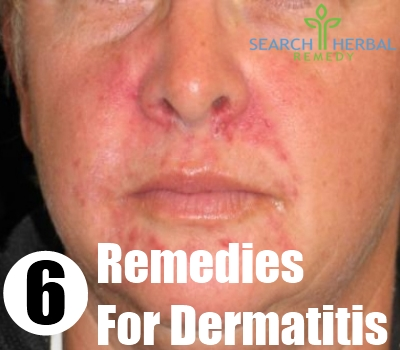 All Natural Remedies For Seborrheic Dermatitis