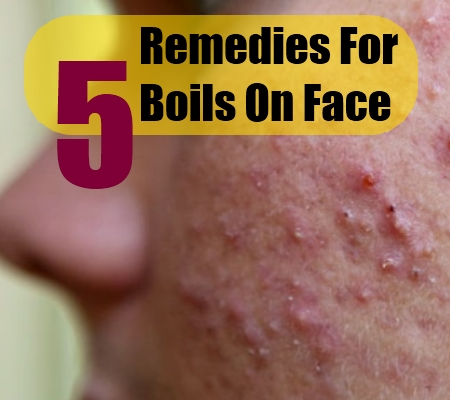 How To Cure Boils On Face Naturally