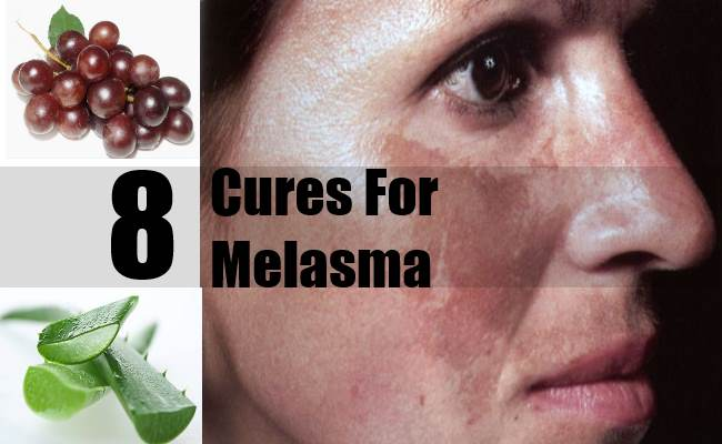 8 Cures For Melasma - How To Cure Melasma Naturally